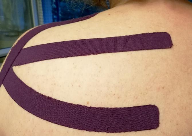 Bei Schulterschmerzen Kinesio-Tape anwenden