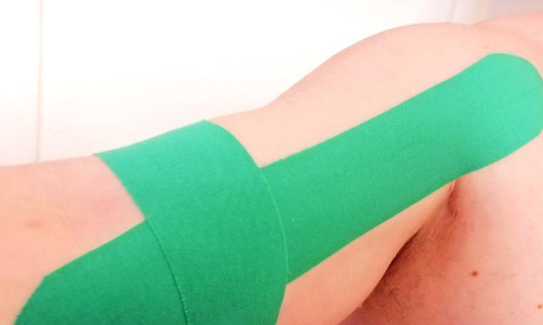 Kinesio-Tape gegen Muskelschmerzen im Oberarm